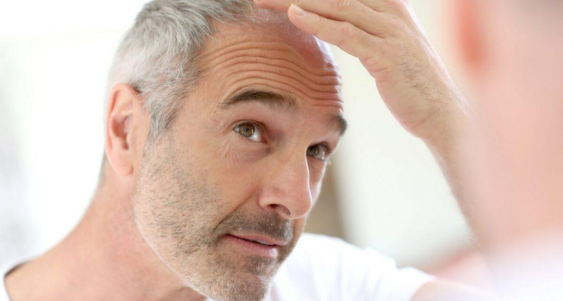 הפרופסור המקריח מהרצליה המציא מכשיר שמצמיח שיער בחזרה